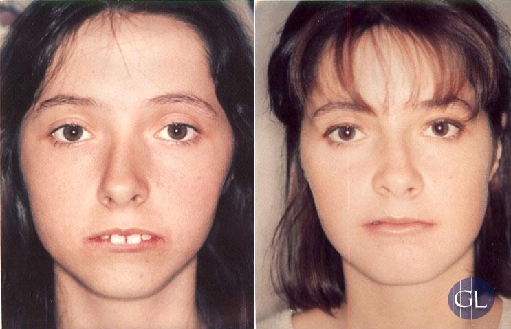 Traitement combiné orthodontie / chirurgie des mâchoires