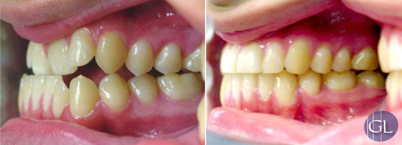 Traitement d'orthodontie sans chirurgie des mâchoires