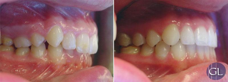 Traitement orthodontique avec appareil de croissance