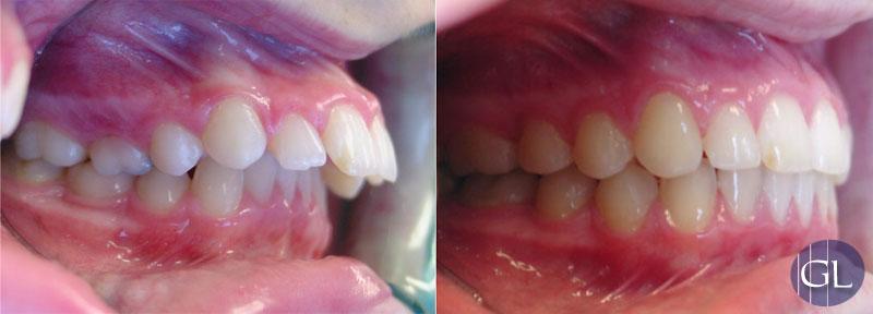 Traitement orthodontique avec appareil de croissance pour mâchoires