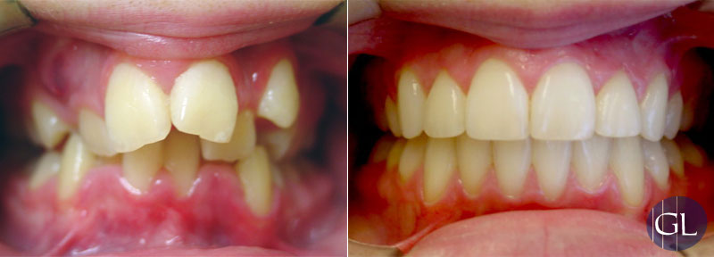 Traitement orthodontique avec extractions dentaires