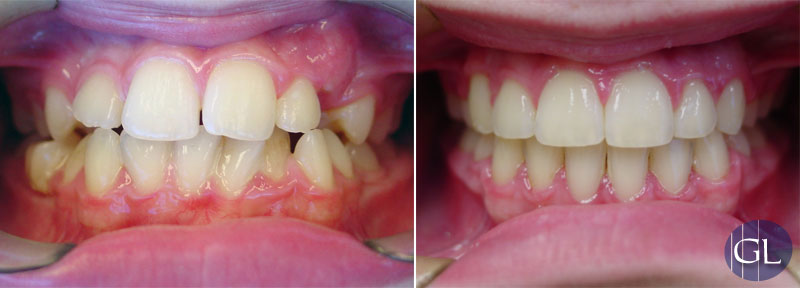 Traitement d'orthodontie avec broches sans extractions dentaires