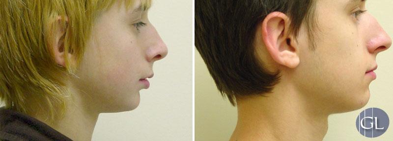 Traitement d'orthopédie dento-faciale – croissance de mâchoire inférieure