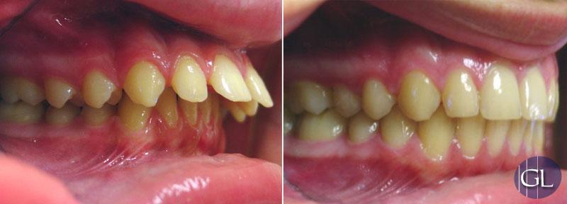 Traitement orthodontique avec appareil de croissance, sans chirurgie de mâchoires