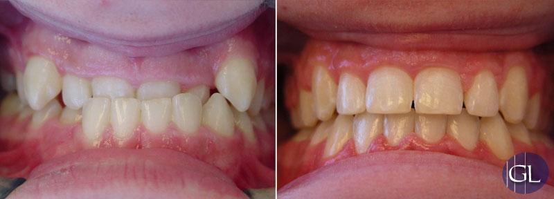 Traitement d'orthodontie avec extractions dentaires sans chirurgie